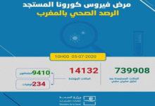 Photo of تسجيل 310 حالات إصابة جديدة مع تعافي 81 شخصا